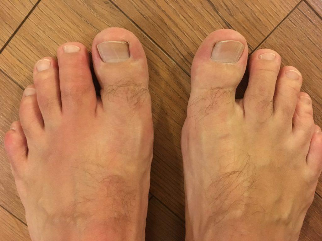 sérült láb