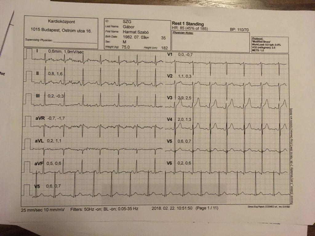 EKG maratonra